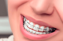 What Kind Of Braces Should Your Child Get?