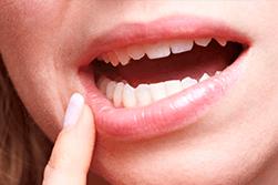 Molars And Wisdom Teeth Explained