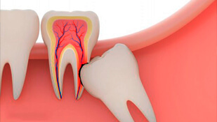 how to tell if your wisdom teeth are impacted