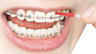 How To Keep Smelly Breath At Bay When You've Got Braces