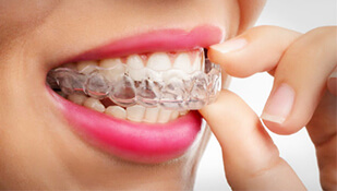 Braces Vs. Invisalign: The Pros And Cons Of Each